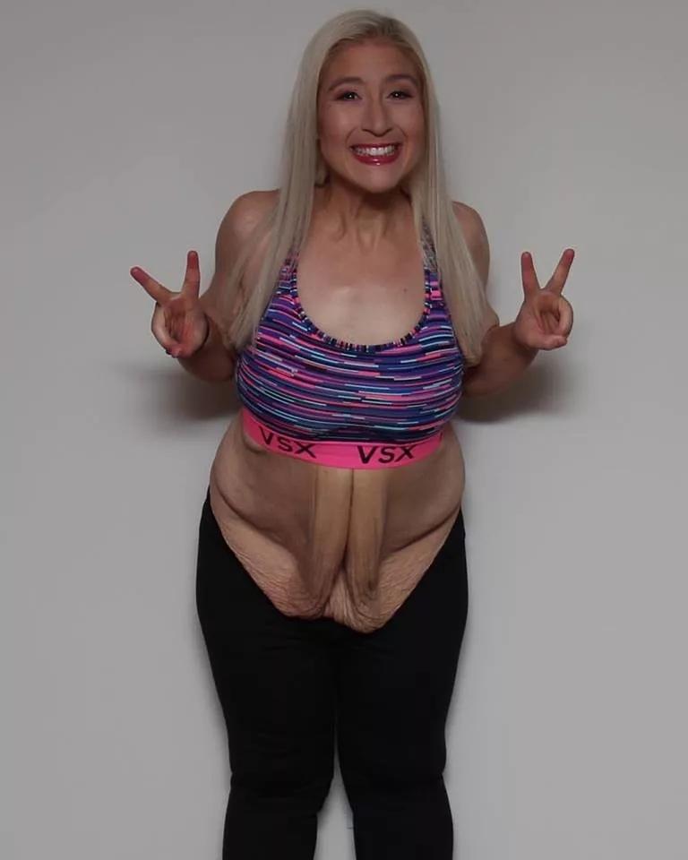 У девушки был красивый бойфренд, и она очень расстраивалась из-за лишнего веса.