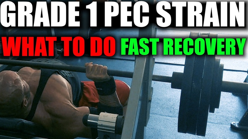 PEC STRAIN PULL HOW TO REHAB AND SPEED RECOVERY